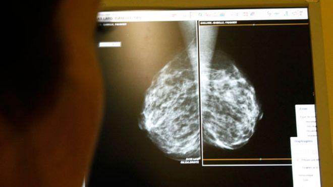 Качество жизни после рака молочной железы не ухудшается