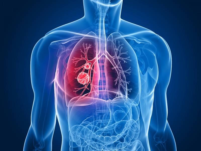 Найден новый маркер для ранней диагностики рака легких