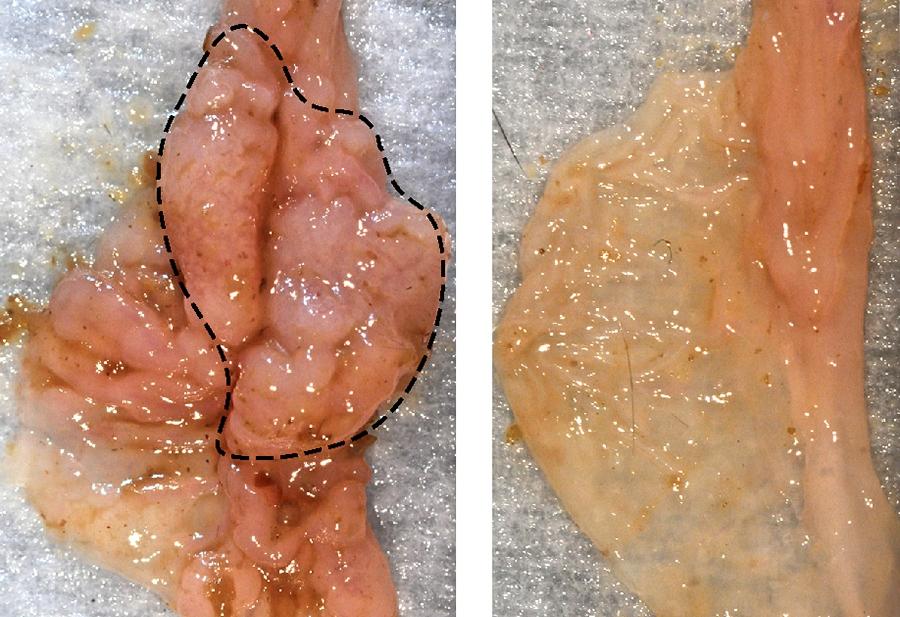 Кишечные бактерии стимулируют развитие рака кишечника