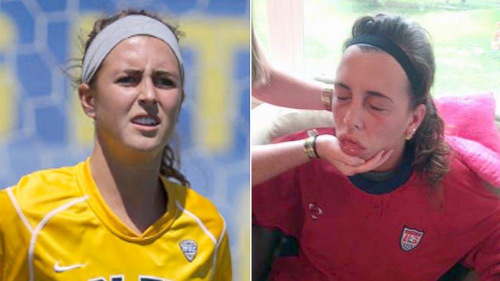 У спортсменки из Огайо смертельная аллергия на собственный пот