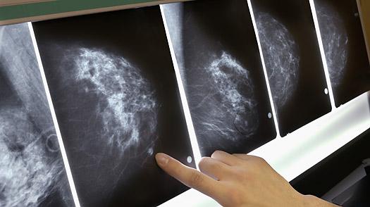 Генетическая мутация влияет на исход рака груди