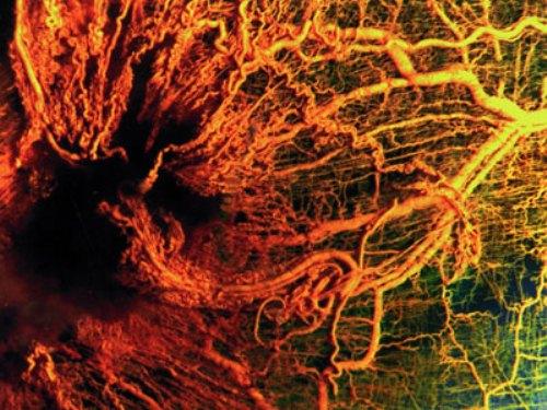 Ангиогенез и метастазирование