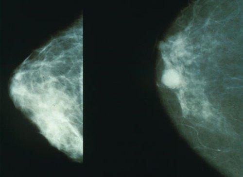 Новый препарат для предотвращения рецидива рака молочной железы показал хорошие результаты