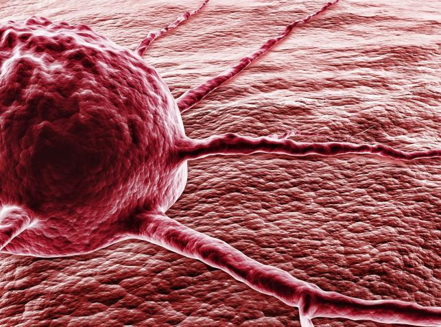 Что такое рак и как он развивается