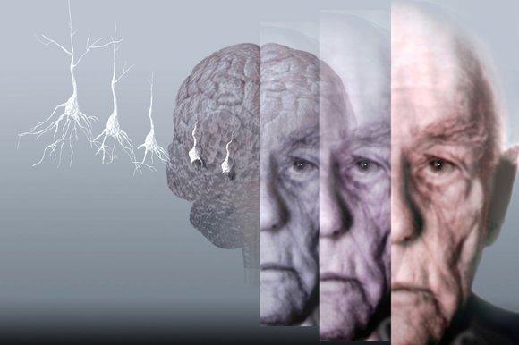 Болезнь Альцгеймера можно предсказать по анализу крови