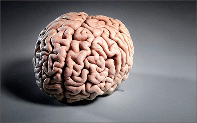 Замедление функций мозга ведет к инсульту